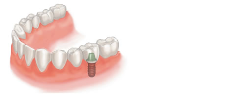 Illustration to show how implants can be used to replace back teeth