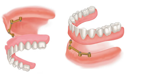 Illustration to show how implants can be used to support dentures