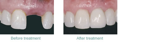 Before and after replacement of a single missing tooth with a dental implant