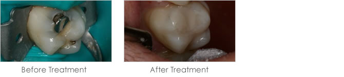 Before and after treatment to replace mercury amalgam fillings with white fillings