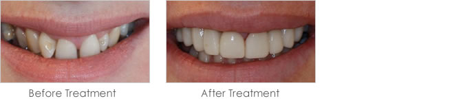 Before and after treatment with dental veneers